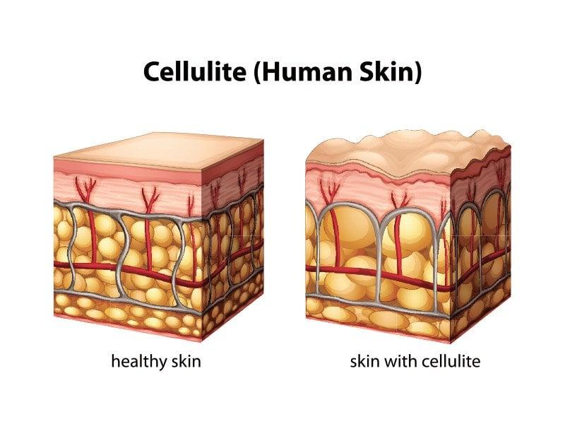 Skin cellulite